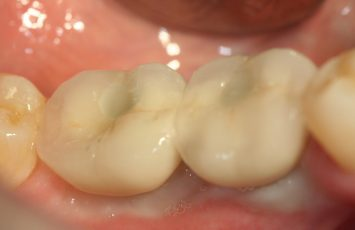 multiple teeth fitted nami farkhondeh