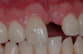 single missing tooth nami farkhondeh