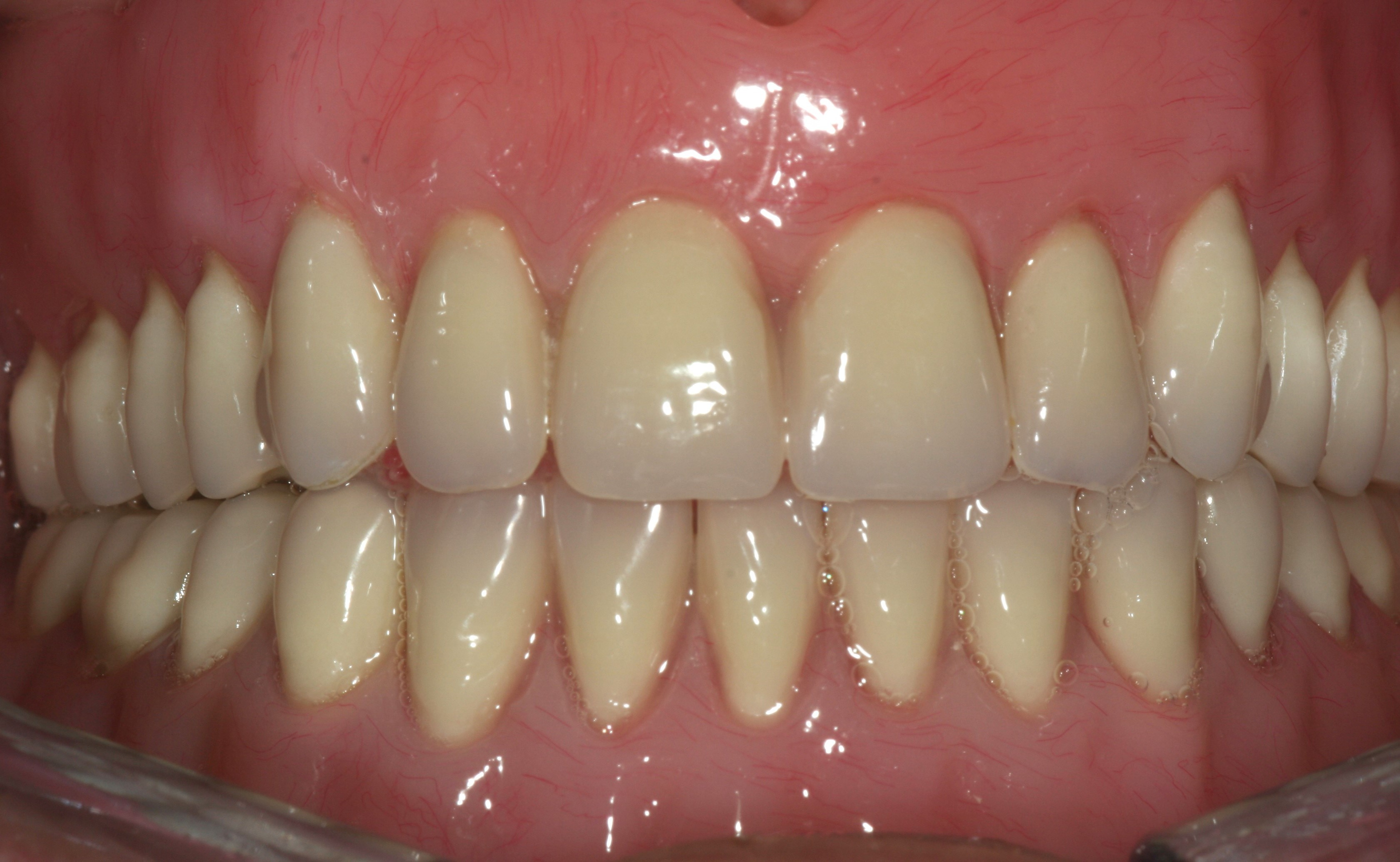 Implant retained dentures 4