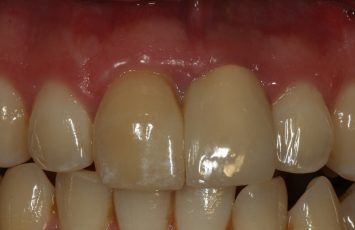 single dental implant nami farkhondeh